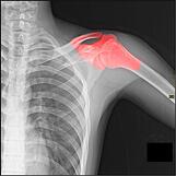 shoulder injury xray