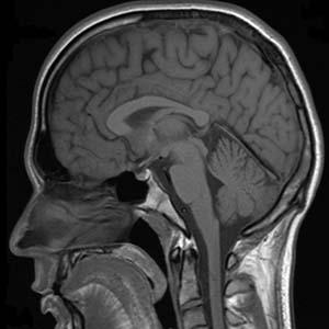 concussion brain injury