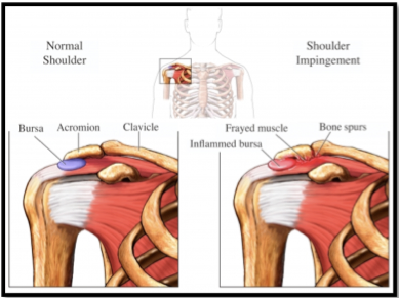 Swimmers Shoulder Prevention And Dryland Training Strategies