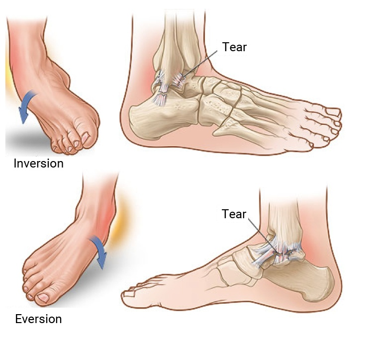 Ankle Injuries