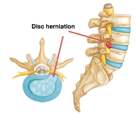 Figure 4 - Herniated Disc in Back