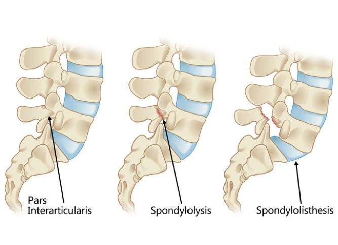 Pars Interarticularis and injuries