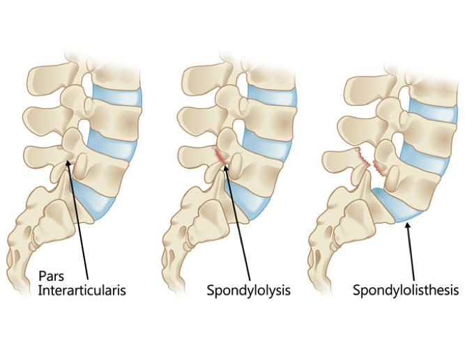 Pars Interarticularis and injuries